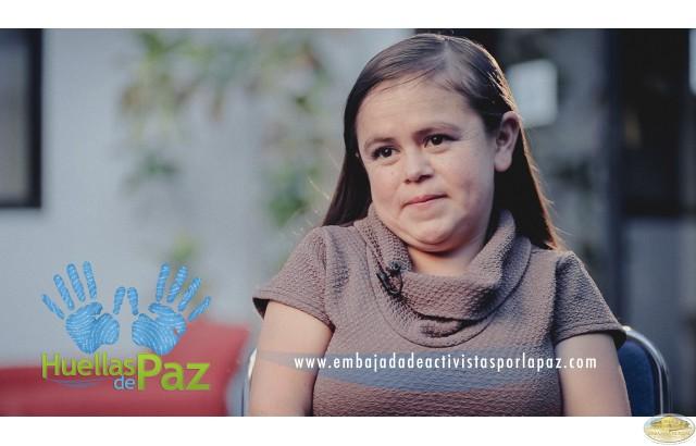 """""""Somos diferente a otras personas pero todos son diferentes: hay negros, blancos, mestizos, pequeños, bajos, gordos, flacos, etc. No hay uno igual a otro, a menos que sean gemelos (ni así). Entonces, salgan y disfruten la vida como lo deben hacer"""". Maritza Valarezo - Paciente con síndrome de Laron. Ecuador."""